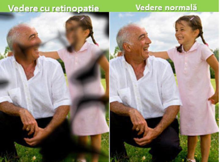retinopatie.png